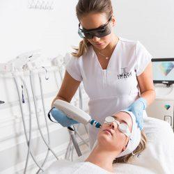 Erbium-fractional-laser-huidbehandeling