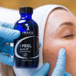 IMAGE-Skincare-Anti-acne-behandeling-peeling