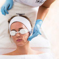 IPL-laserbehandelingen-huidverkleuring